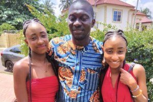 First Conjoined Twins separated in Ghana; Check out their current Beautiful Pictures