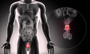10 Diet and Exercise Tips to Lower Your Risk of Prostate Cancer